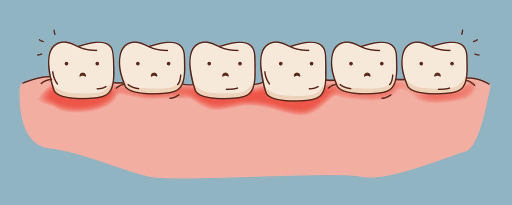 periodonal-disease
