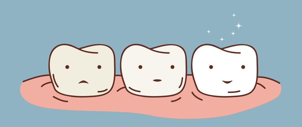 teeth-whitening-05